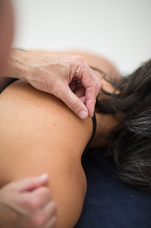 Pavilion Osteopathy - Acupuncture to trapezius (shoulder)